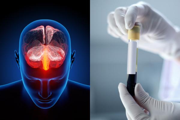 تشخیص افسردگی با استفاده از تست خون