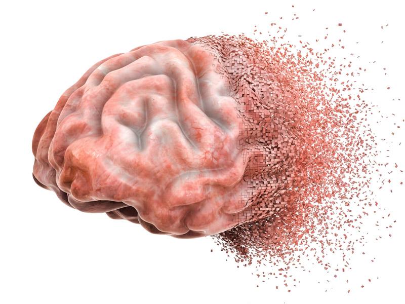 درمان آسیب مغزی با نوروفیدبک